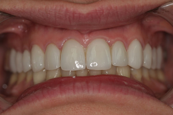 11-after-porcelain-veneers